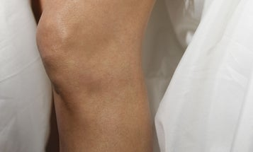 5 simple tips to reduce knee wrinkles after 40