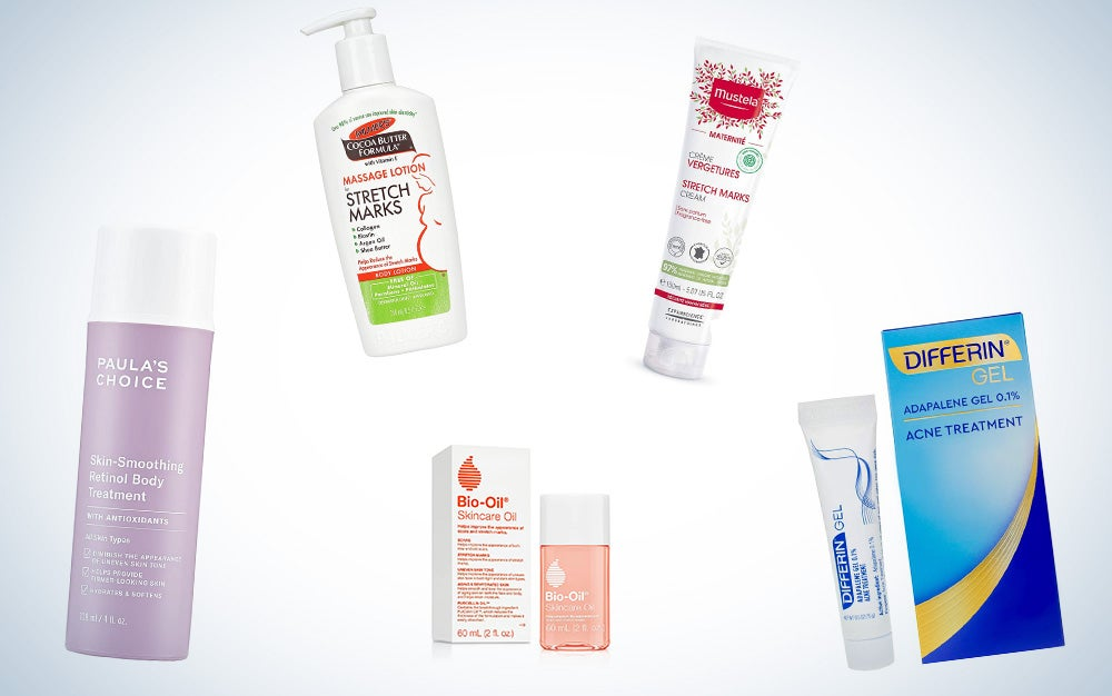 best stretch mark ointments